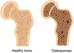 osteporosis